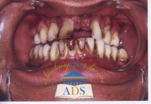 maladie parodontale - tabac (allégée)