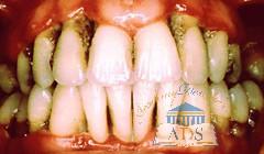 periodontitis[1]