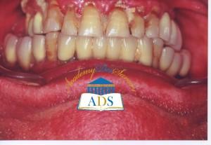 maladie parodontale etAbcès--
