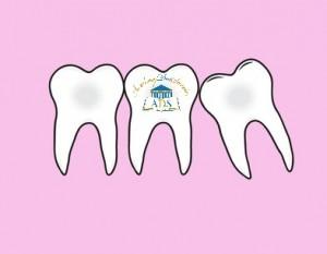 3 dents